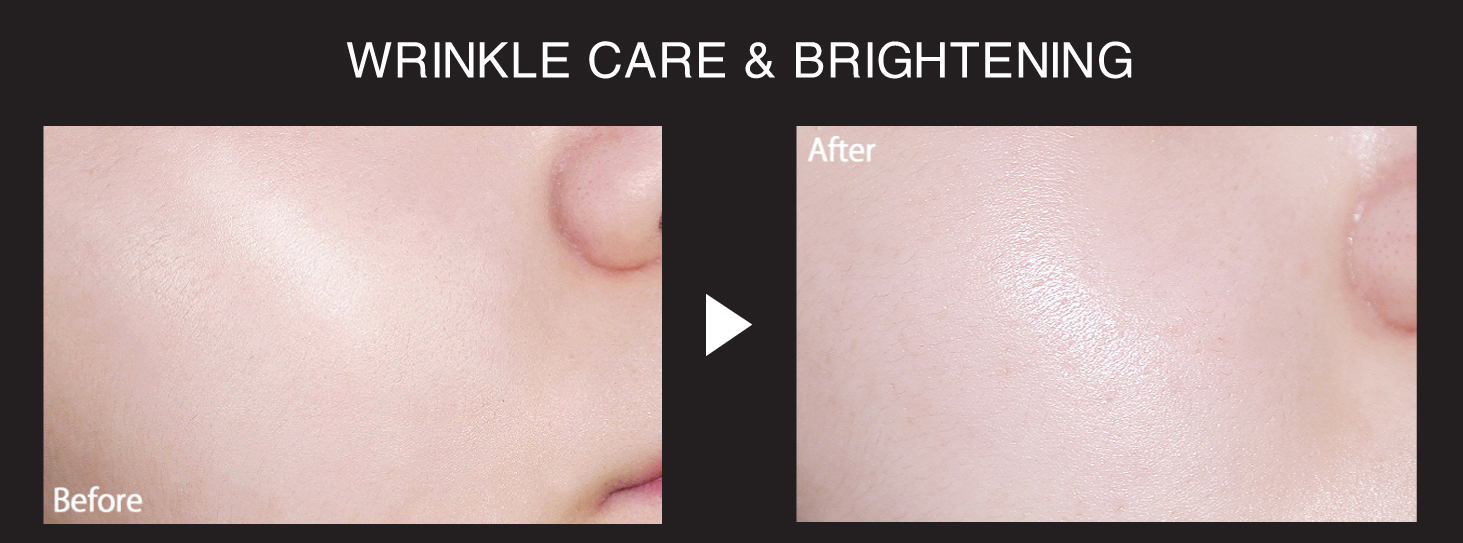 Before After Immortal Youth Cream